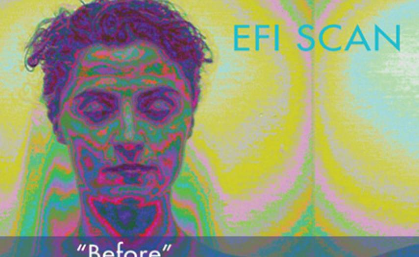 EFI Scan with Dr. John Rogersen